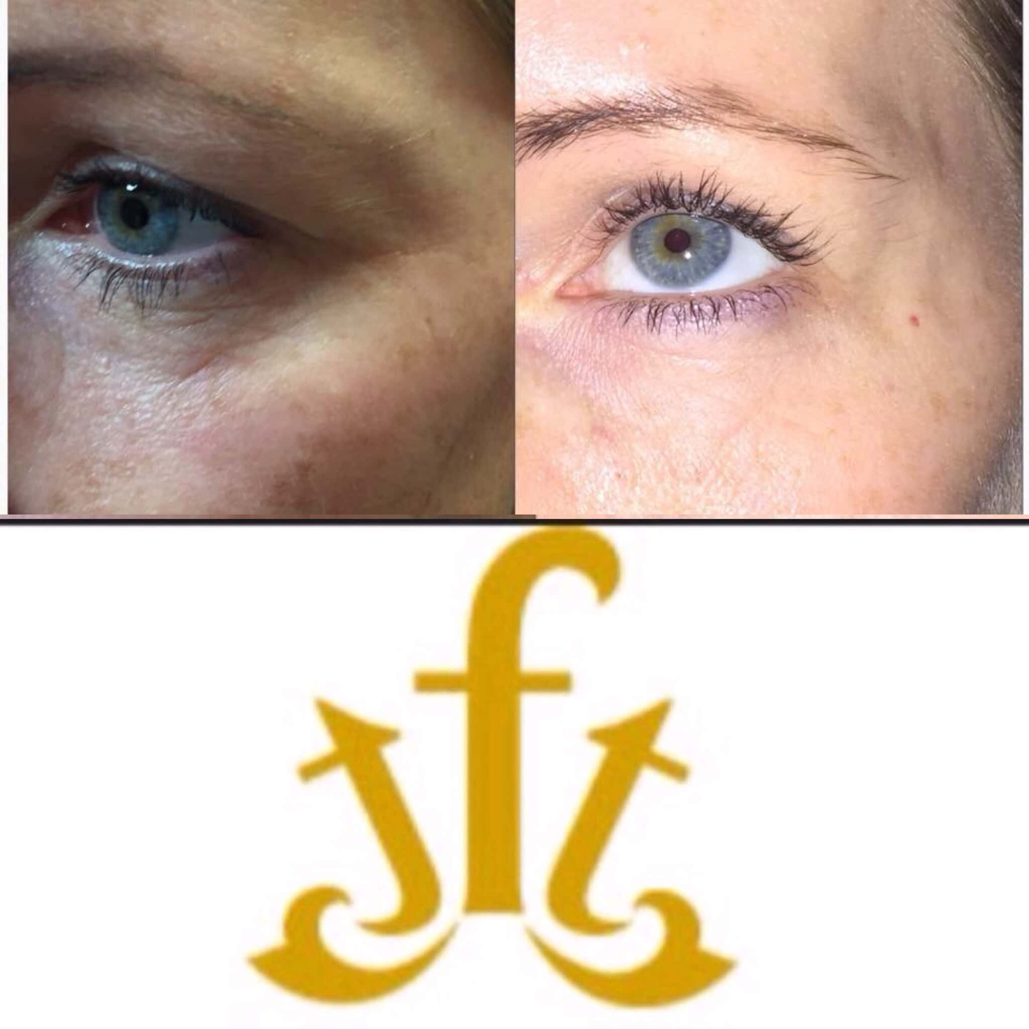 Ladies eye that has been treated showing before and after