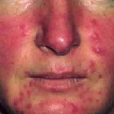 Skin with rosacea