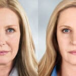 before and after - Sculptra treatment
