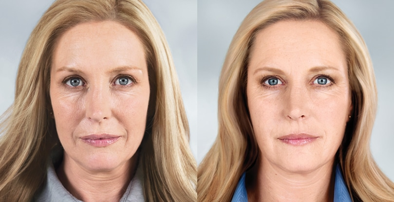 Lady with before and after photo's showing less wrinkles after treatment