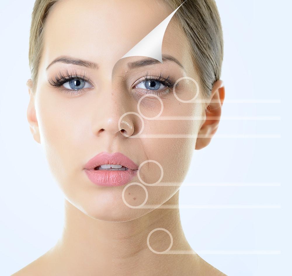 Skin rejuvanation peels