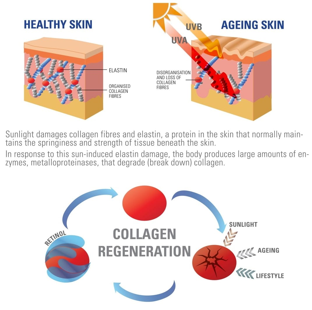 Retinol - Collagen regeneration