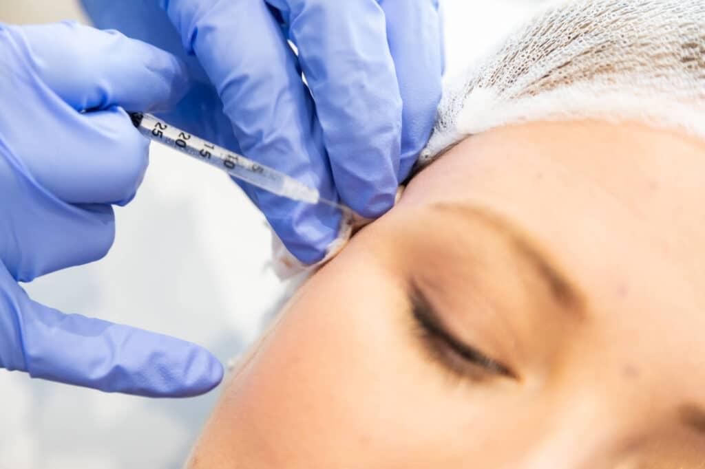 Wrinkle Reduction botox
